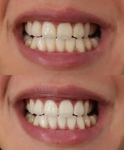 The promise is real. I saw instant visible results after just 20 minutes!