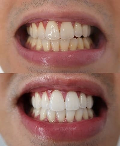 I did the triple whitening service. It took only one hour and no sensitivity. Good thing my girlfriend forced me to do it. I started off with really yellow teeth. So I'll come back.